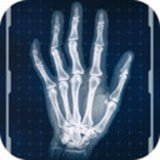 真实X射线模拟